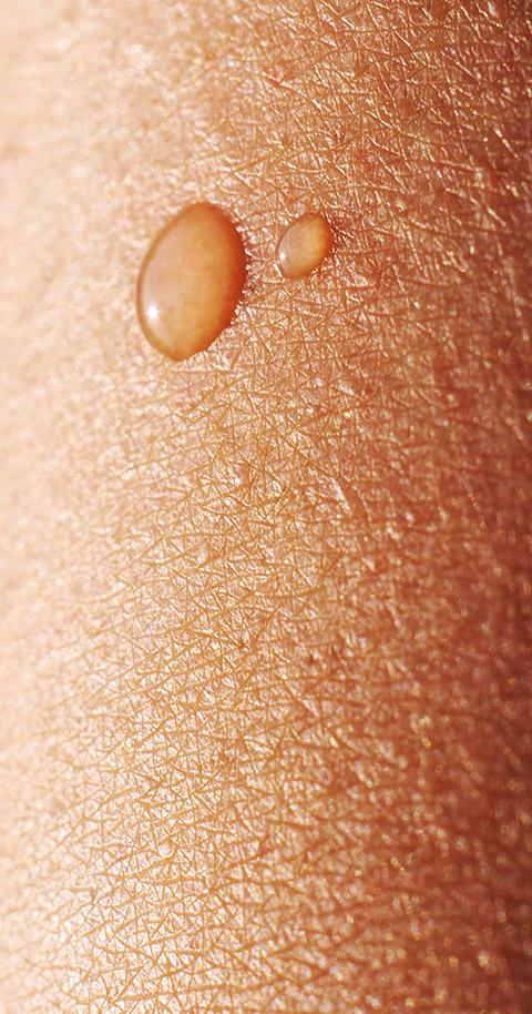 Allgemeine Dermatologie